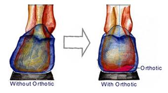 Custom-Orthotics-3
