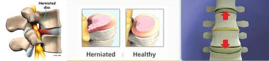 Herniated Disks