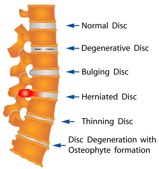 Illustration of common spine conditions.